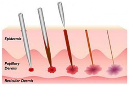 collagen induction therapy CIT