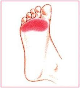 Cushions for feet stiletto-tarsalgia